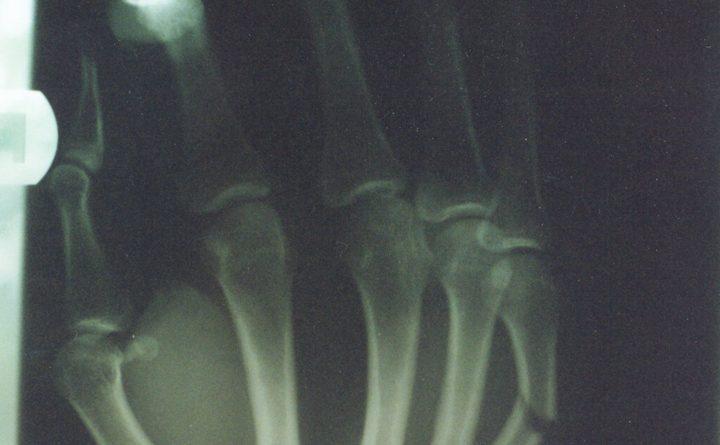 Osteoporosis dan Kalsium
