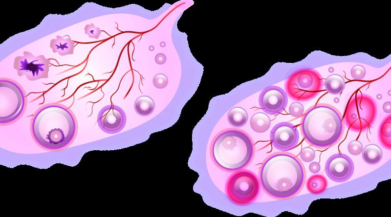 Gejala dan Perubahan Terkait Kondisi Menopause
